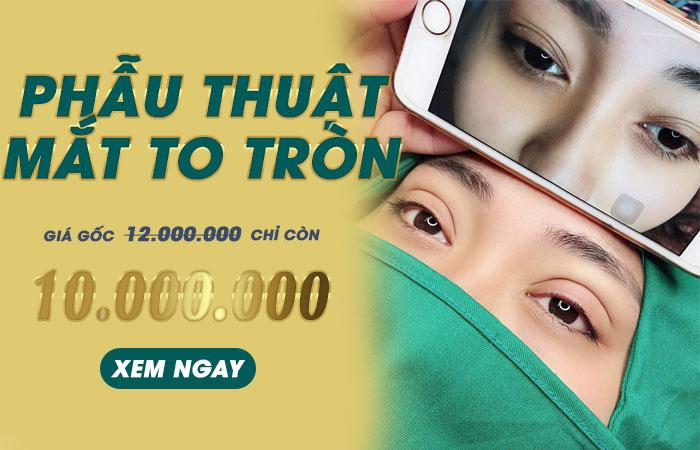 Phẫu Thuật Mắt To - Mắt To Tròn Chuẩn Hàn Quốc
