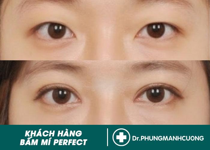 Kết Quả: Hình Ảnh Khách Hàng Trước & Sau Bấm Mí Mắt Đẹp